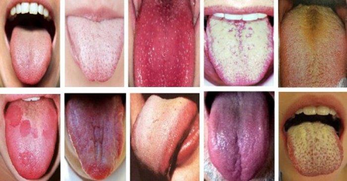 Čo o vašom zdraví hovorí farba vášho jazyka? - LajfHeky