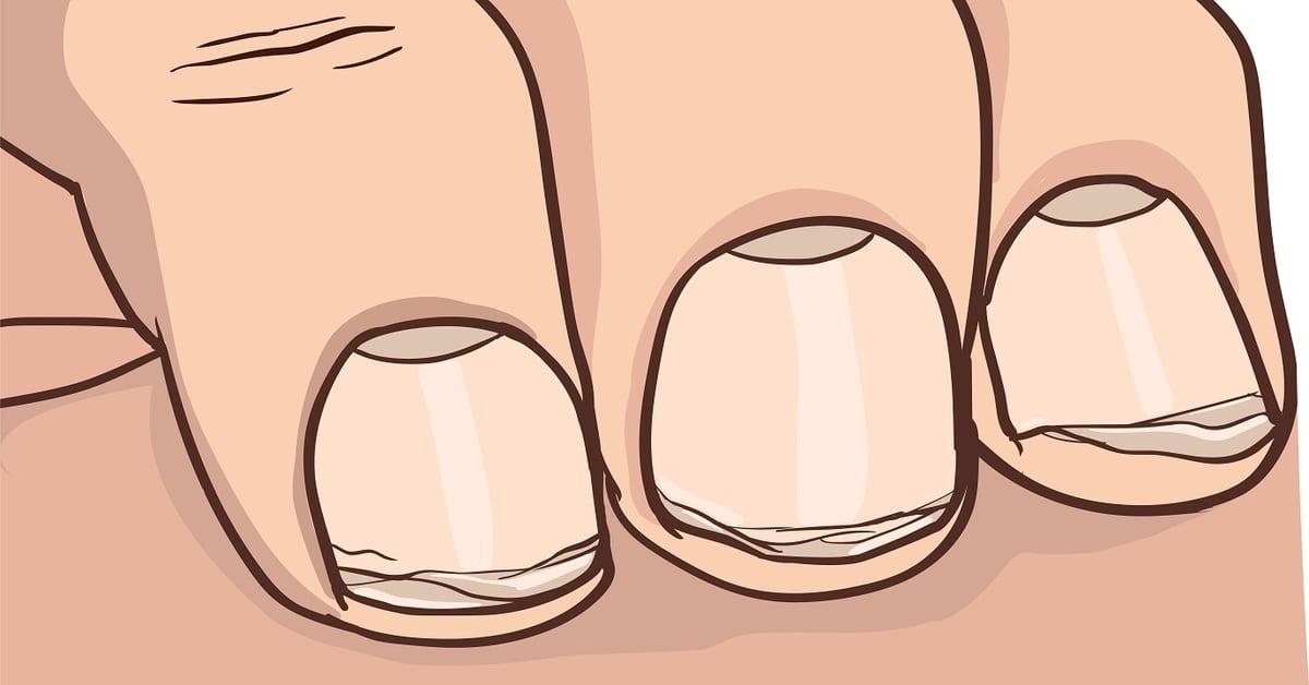 Aké sú najnebezpečnejšie dôsledky obhrýzania nechtov? - LajfHeky